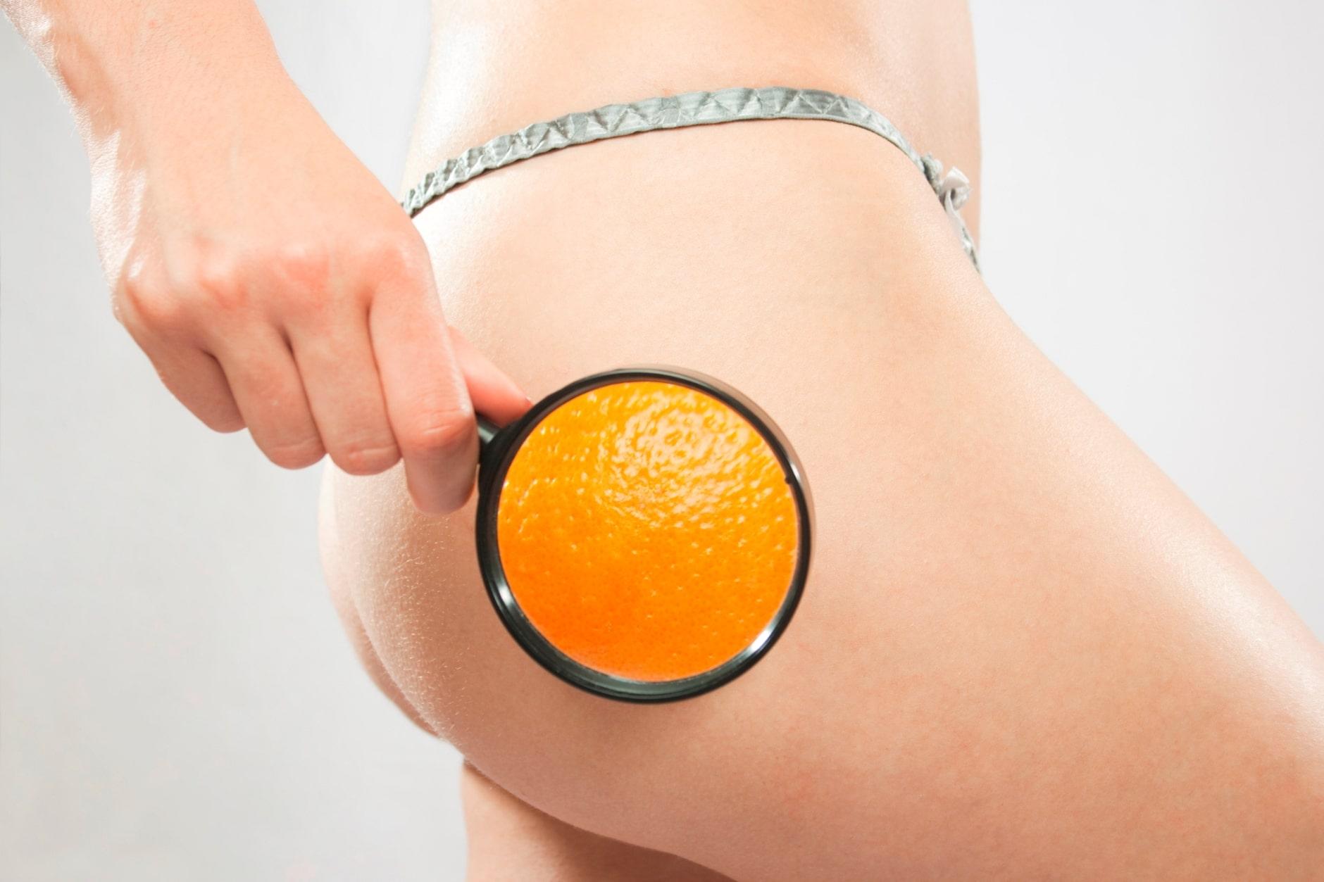 cellulite-peau-dorange-solutions-chasser-vilains-capitons